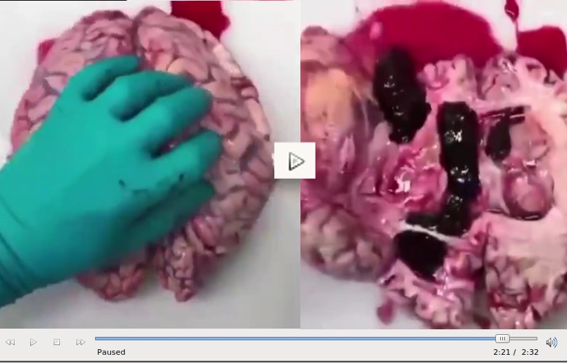 IF YOU DO NOT SEE A PICTURE OF BLOOD CLOTS HERE THAT YOU CAN CLICK AS A LINK, IT GOT CENSORED, JUST CLICK THIS INSTEAD.